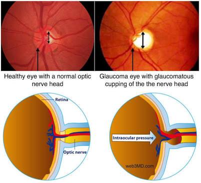 Glaucoma Dadareye Com